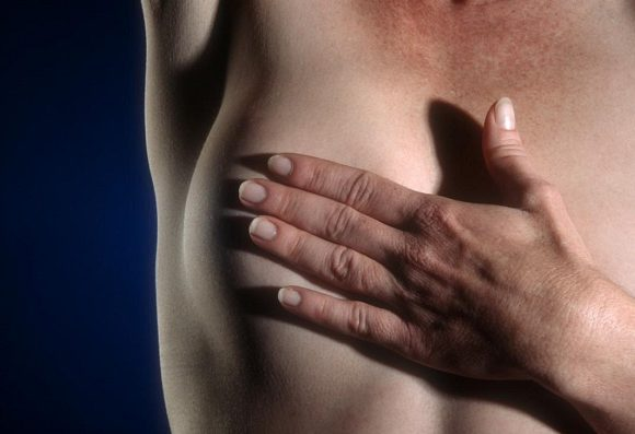 Obesity Causes Breast Cancer – Oncologist